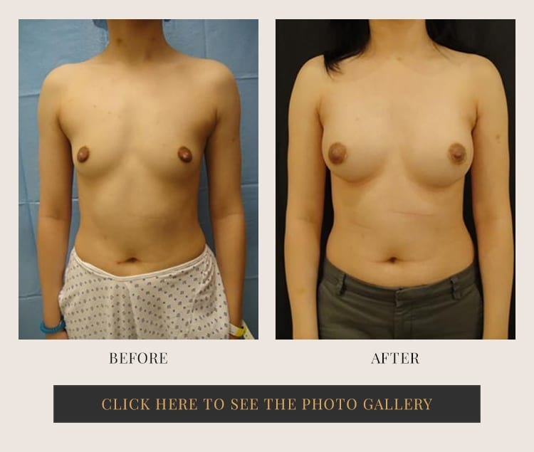 Breast Augmentation Westchester Cosmetic Surgical Arts Ny