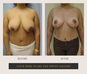 Liposuction in White Plains, New York   Top Rated in Westchester 9