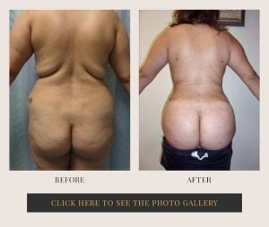 Liposuction in White Plains, New York | Top Rated in Westchester 13
