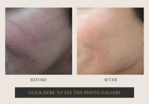 Liposuction in White Plains, New York | Top Rated in Westchester 20