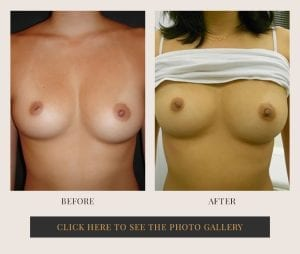 Liposuction in White Plains, New York | Top Rated in Westchester 22