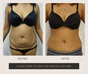 Liposuction in White Plains, New York | Top Rated in Westchester 29