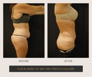 Liposuction in White Plains, New York | Top Rated in Westchester 30