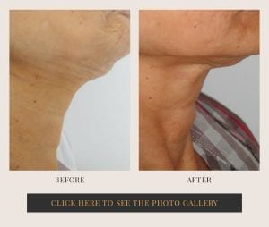 Liposuction in White Plains, New York | Top Rated in Westchester 33