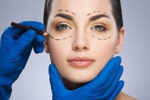 Cosmetic surgery patient with surgical lines on her face in Westchester, NY.