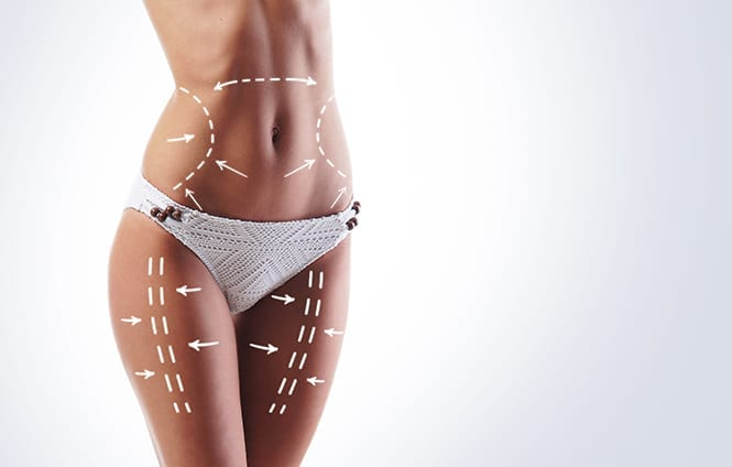 Westchester, NY woman shows liposuction results