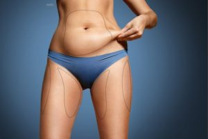 Women pinching some abdominal fat wearing blue undergarments. Body contouring lines drawn on her abdomen and thighs.