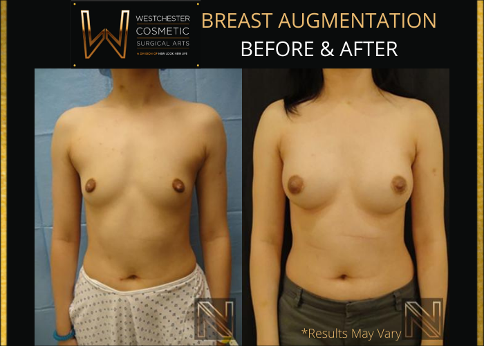 Before and after image showing the results of a breast augmentation performed in Westchester, NY.